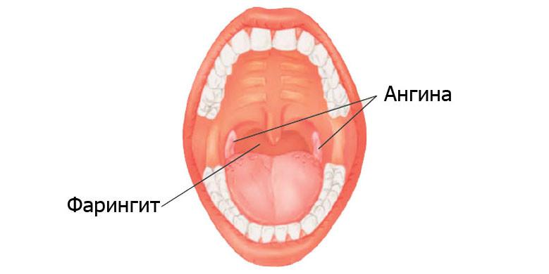 Как может болеть горло