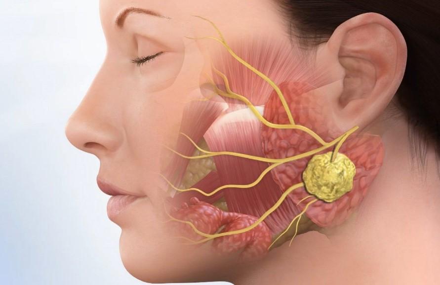 Симптомы паратонзиллярного абсцесса